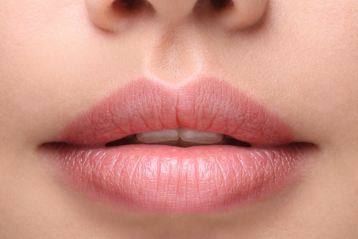 Lip Fillers Bristol