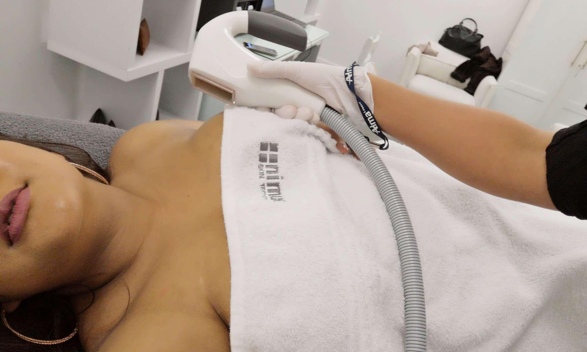 Azthetics Clinic - laser treatment