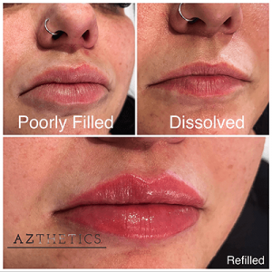 Before and after lip filler dissolved and refilled