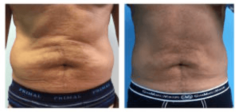 Fat cell dissolving - Before and after treatment