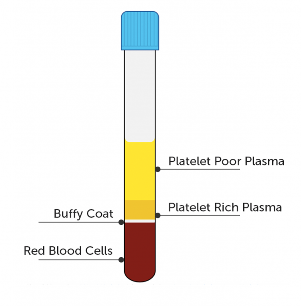 PRP layers