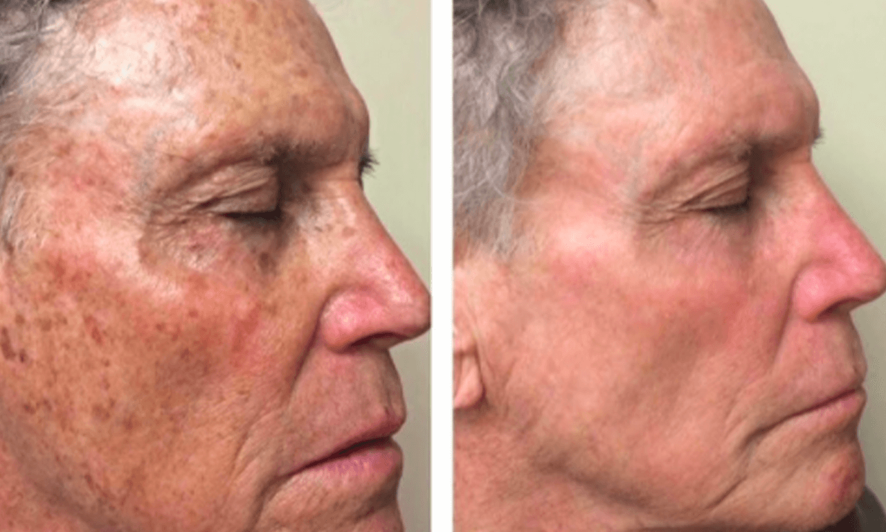 Sunspots and hyperpigmentation treatment before and after