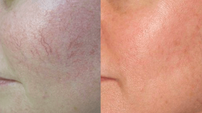 Vascular Lesions treatment before and after